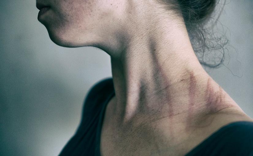 Fotoserie: 'Ik ben ziek en dat heeft effect op mijnlichaam'